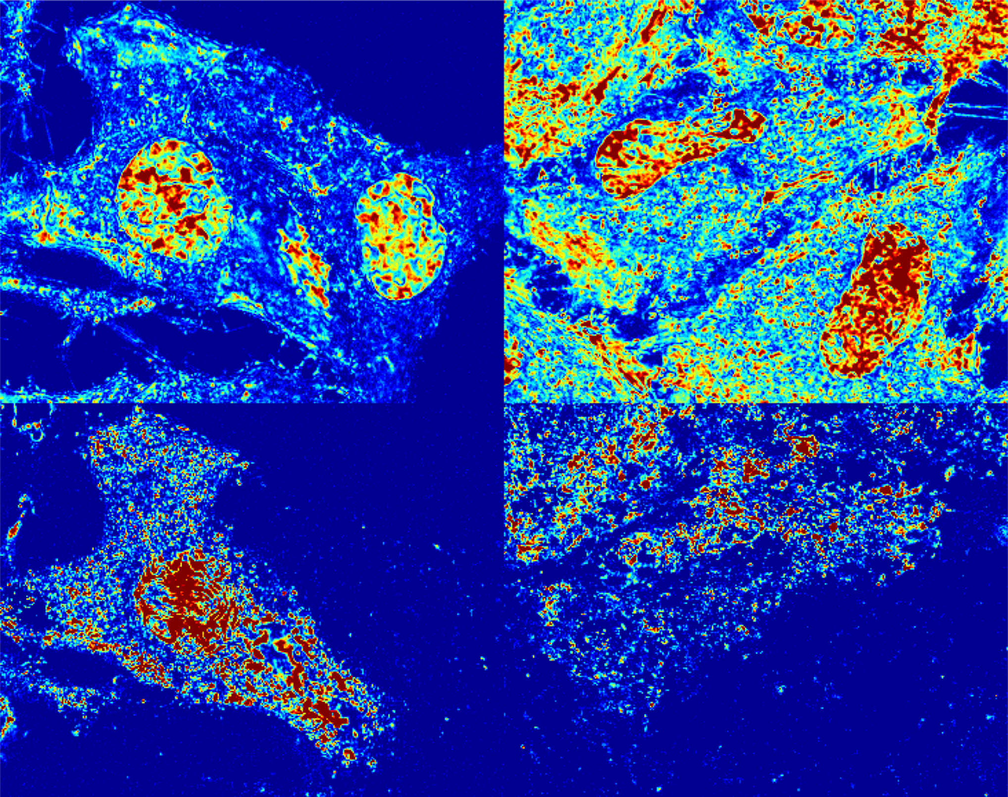 Four blocks of cancer cell representations on blue background
